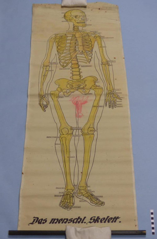 Das menschliche Skelett :: Mindener Museum :: museum-digital ...