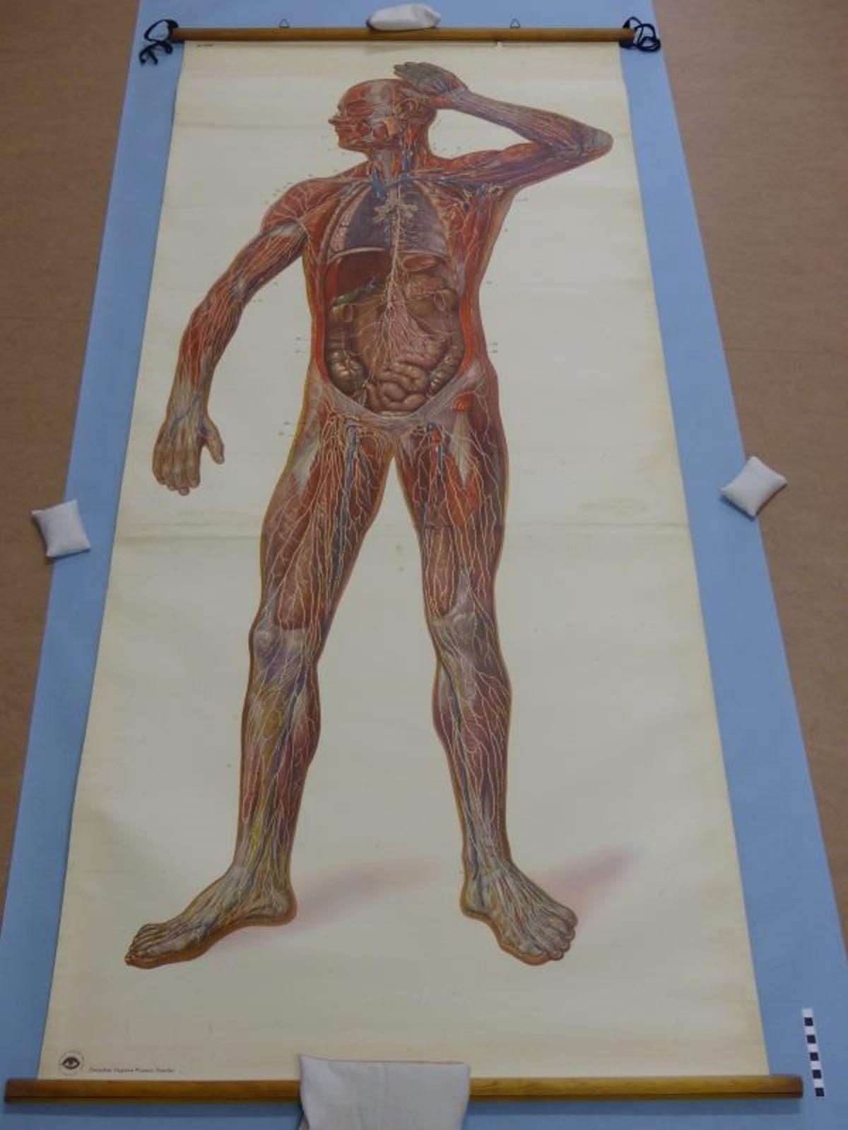 Lymphgefäße des menschlichen Körpers :: Mindener Museum :: museum ...